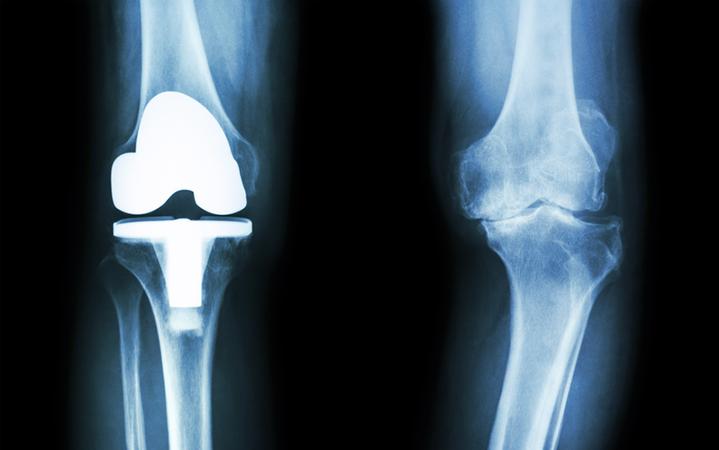 Chirurgia protesica del ginocchio